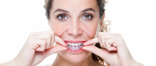 Invisalign Benefits, Surrey Dentist